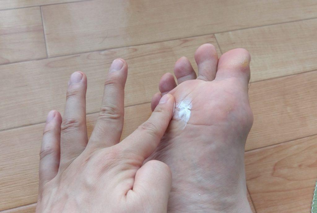 【画像】男性の臭い足に利くクリームを広げる
