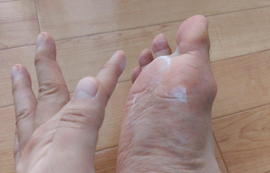 【画像】男性の臭い足に利くクリームを刷り込む