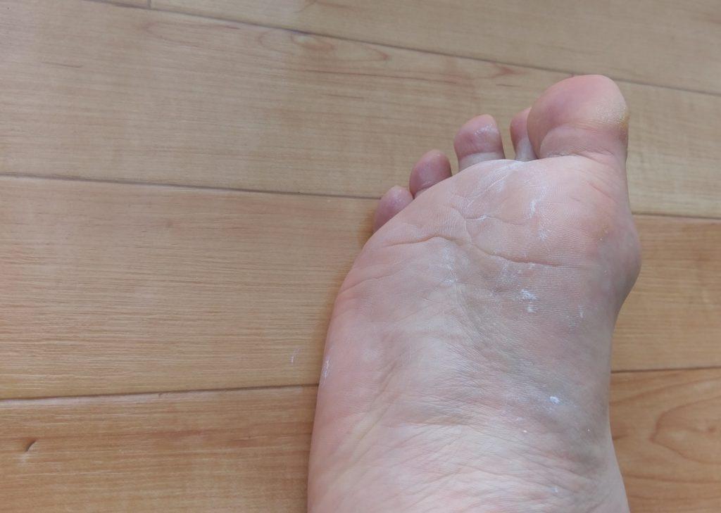 【画像】男性の臭い足に利くクリームを塗り終わった