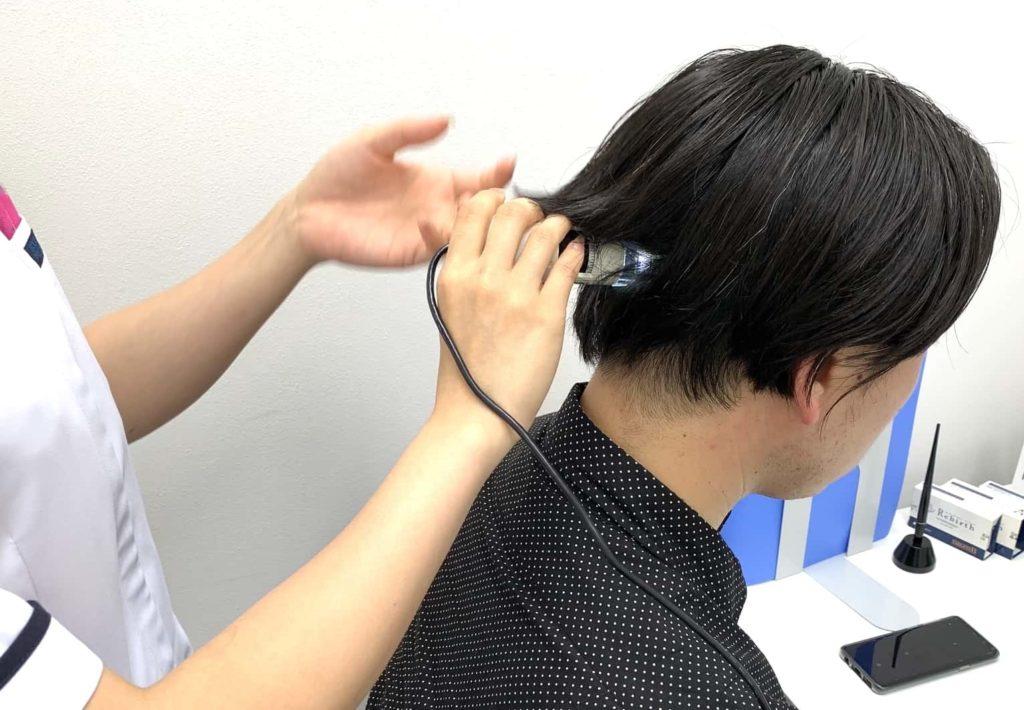 【画像】マイクロスコープで頭皮チェック